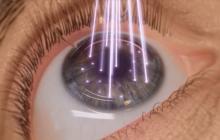 خطرات جراحی لیزیک